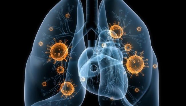 В Роспотребнадзоре рассказали о ситуации с пневмонией в Новгородской области