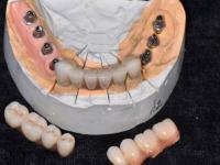 В Новгородской области стоматологи и их клиент получили своё благодаря суду