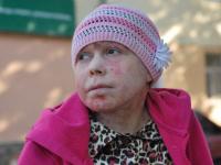 Новгородской «девушке-бабочке» Надежде Кузнецовой очень нужна помощь неравнодушных людей
