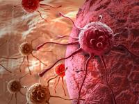 В минздраве РФ назвали виды рака, от которых чаще всего умирают