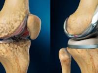 Из-за чего разрушается коленный сустав?