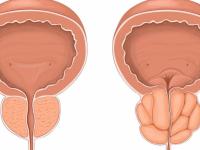 Какие симптомы могут указывать на появление у мужчины аденомы простаты?