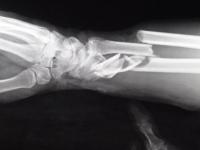 В Пестове восьмиклассник сломал на уроке физкультуры обе руки