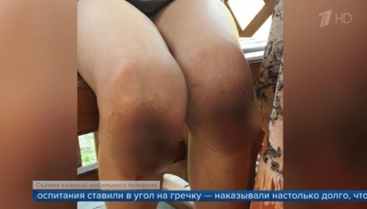 В Омске суд вынес приговор родителям, которые шокирующе жестоко наказывали ребенка