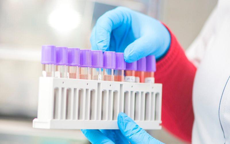 В России за сутки заразились коронавирусом 6 148человек. Это максимум за два месяца